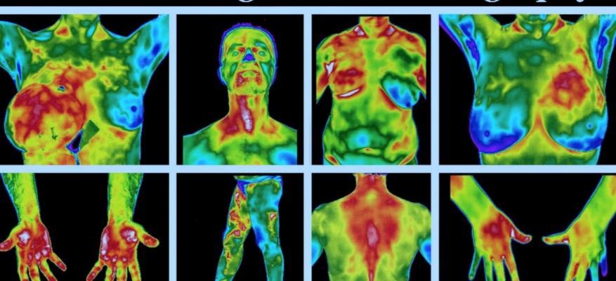 Τι είναι η Υπέρυθρη Απεικονιστική Θερμογραφία; What is Infrared Imaging Thermography?